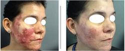 BAS Intensive Rosacea Treatment