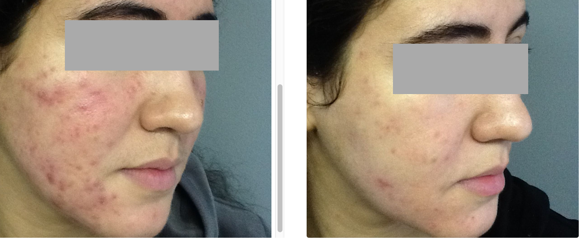 BAS Intensive Acne Treatment 8-weeks