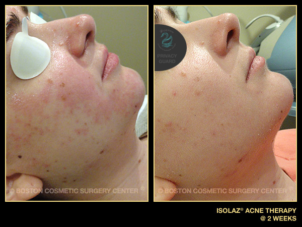 1061-isolaz-acne-therapy.jpg