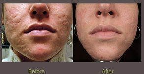 F.A.S.T laser treatment for acne