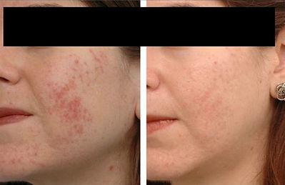 Acne Pigmentation