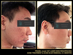 1075-fraxel-repair-laser-acne-treatment-scar-removal