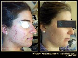intensive-isolaz-acne-treatments-1.jpg