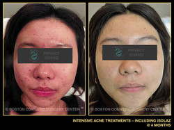 1070-intensive-acne-treatments-isolaz