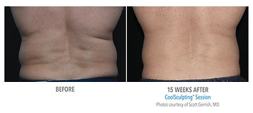 coolsculpting fat freezing procedure