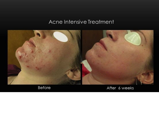acne5.png