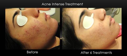 acne_treatment_isolaz_6_sessions.jpg