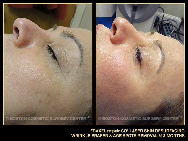 1065-fraxel-laser-treatment-age-spots-wrinkles copy.jpg
