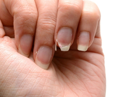 How do I keep my nails from splitting?