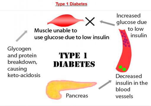 hvorfor får man sukkersyge