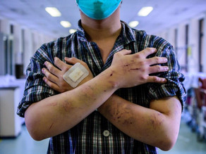 The pandemic and political changes in Hong Kong
