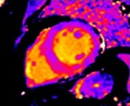 Cardiovascular Magnetic Resonance ANZCMR MRI
