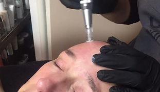 nano-demabrasie (huidverbetering, peeling, rokershuid, littekens)