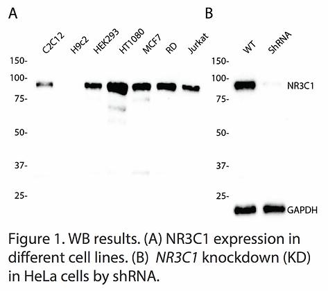 Validated NR3C1 Lentiviral shRNA #V5911