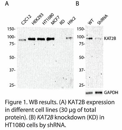 Validated KAT2B Lentiviral shRNA #V4171