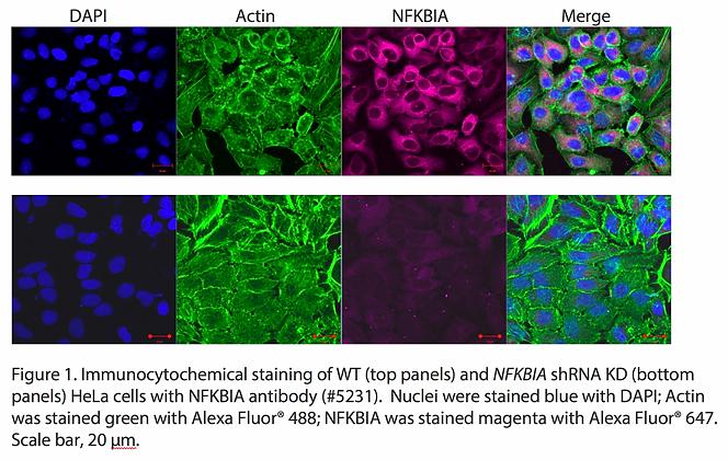 Validated NFKBIA Lentiviral shRNA #V5231