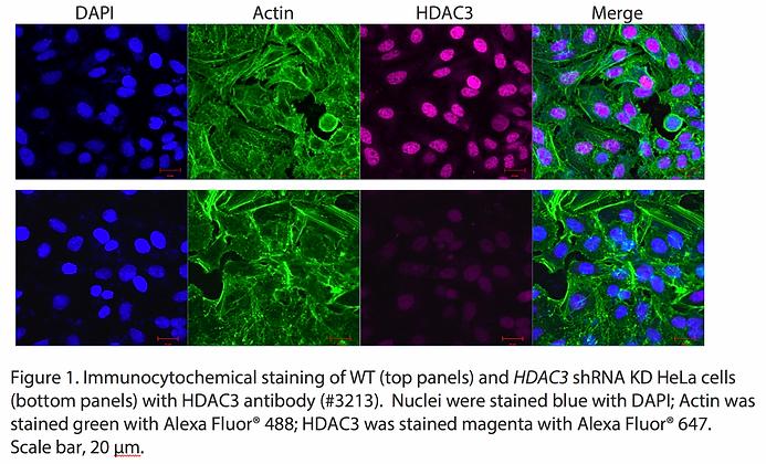 Validated HDAC3 Lentiviral shRNA #V3213