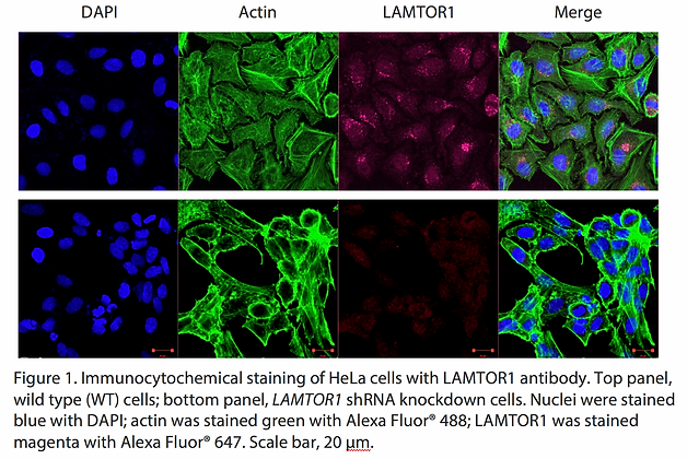 Anti-LAMTOR1 Rabbit Polyclonal Ab #4151