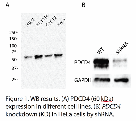 Anti-PDCD4 Rabbit Monoclonal Ab #6214