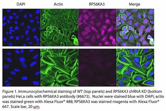 Validated RPS6KA3 Lentiviral shRNA #V6673