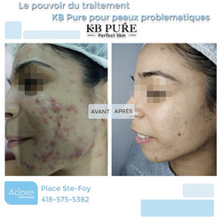 acne kb