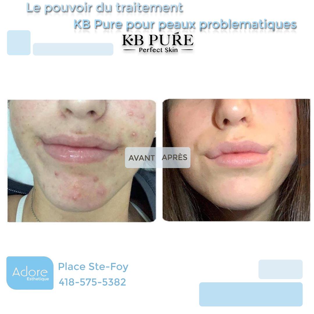 acne4