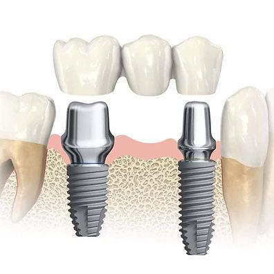 Dental_Implants-2.jpg