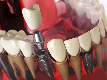 tooth-implant-in-the-model-human-teeth-g