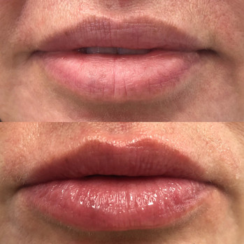 Perk Lip Healing Hamsa St. Louis Spa (3)