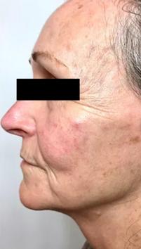 Aging BEFORE Chronobiology Facial at Healing Hamsa Spa in St. Louis