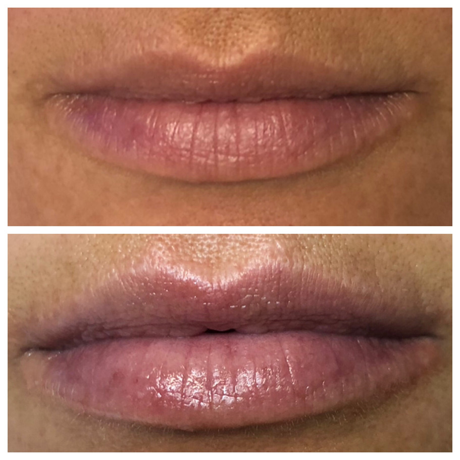 Perk Lip Healing Hamsa St. Louis Spa (2)