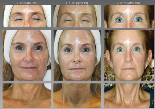 SWiCH Dermal Rejuvenation Facial at Healing Hamsa Spa in St. Louis.PNG