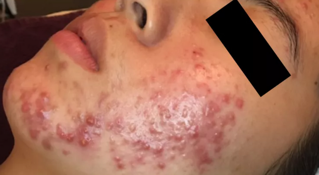 Acne AFTER Chronobiology Facial at Healing Hamsa Spa in St. Louis