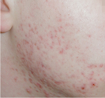 russian_acne_before.jpg