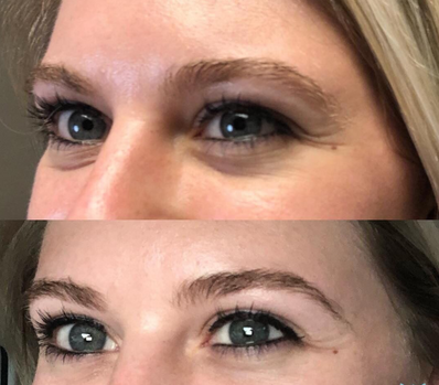 Before and After Perk Eye.PNG