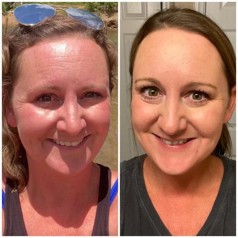Healing Hamsa St. Louis Botox.JPG