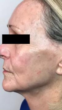 Aging AFTER Chronobiology Facial at Healing Hamsa Spa in St. Louis
