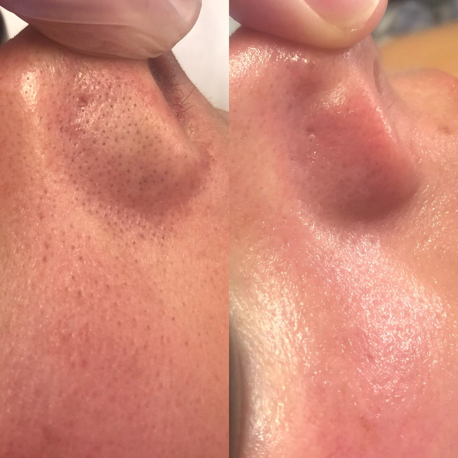 Hydrafacial before and after st. louis h