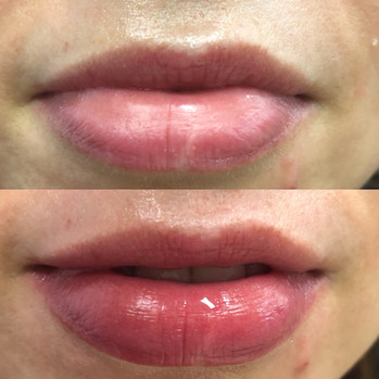 Perk Lip Healing Hamsa St. Louis Spa (1)