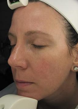 Sun Damage AFTER Chronobiology Facial at Healing Hamsa Spa in St. Louis