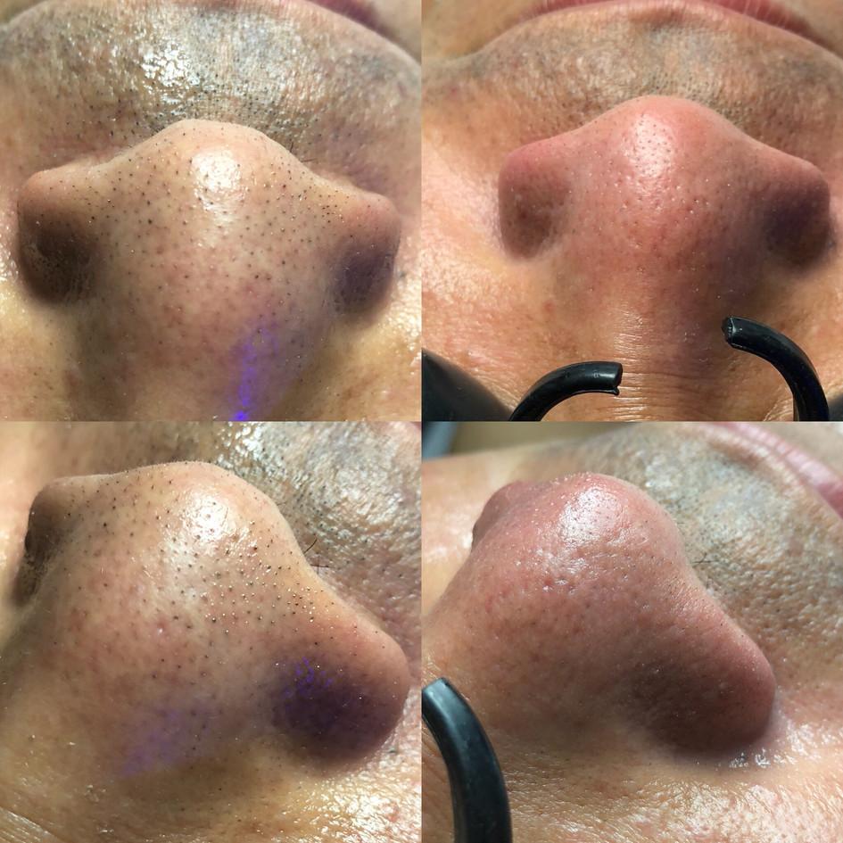 healing hamsa hydrafacial top st louis s