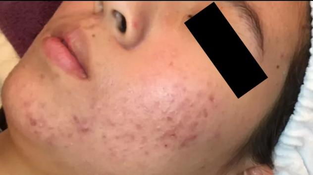 Acne BEFORE Chronobiology Facial at Healing Hamsa Spa in St. Louismsa.PNG