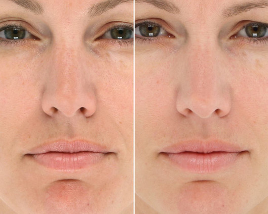 LED Light therapy facial St louis healin