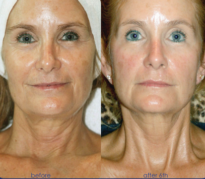 SWiCH Dermal Rejuvenation Facial at Healing Hamsa Spa in St. Louis