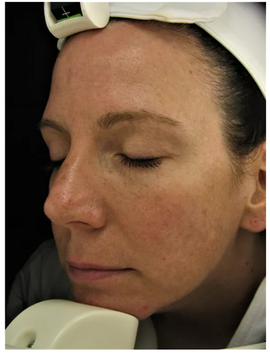 Sun Damage BEFORE Chronobiology Facial at Healing Hamsa Spa in St. Louis