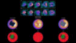 4DMSPECT-4DM-Images+Quant.jpg