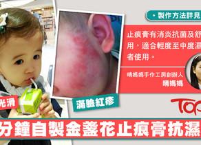 女兒患濕疹媽媽自製「解藥」 5分鐘自製金盞花止痕膏抗濕疹【內附教學】