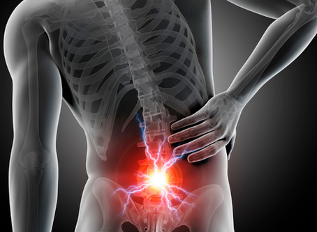 What You Should Know About Acute Low Back Pain