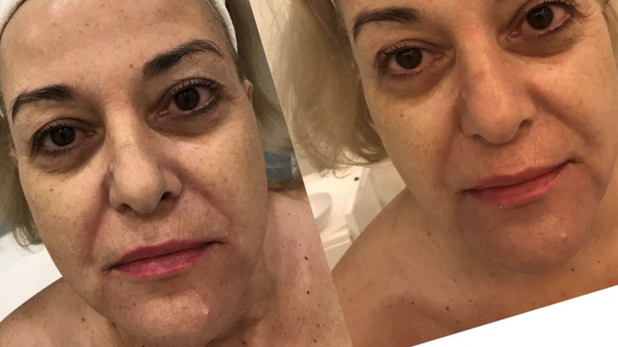 DMK Lifting & Clarifying Facial