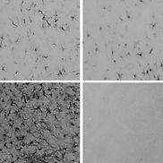 GFAP Immunoreactivity in NAc.jpg